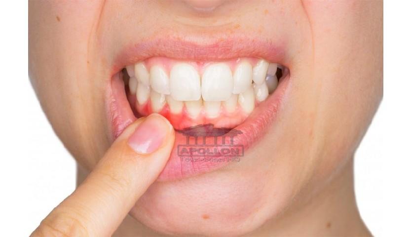 Sëmundja që shkakton rënien e dhëmbëve/ Kujdesi që ju duhet