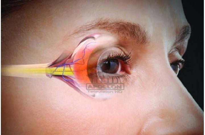 Shëndeti i syve/ Kujdes! Njihuni me 6 simptoma që nuk duhet t'i injoroni